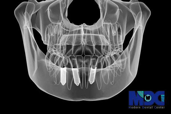 تصویر سه بعدی کاشت دندان