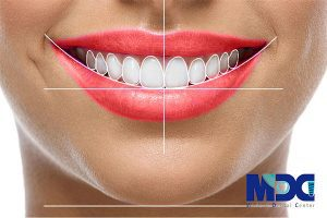 طراحی خط لبخند دیجیتال دندان