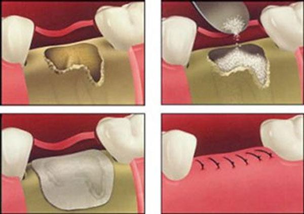 کاشت دندان با استفاده از GBR