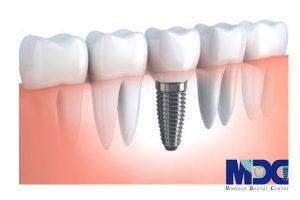 لقی ایمپلنت و دندان طبیعی