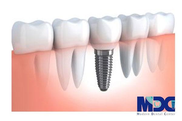 مقایسه لقی ایمپلنت و دندان طبیعی فرد