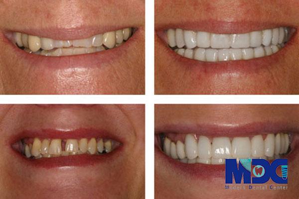 لبخند هالیوودی و ارزیابی آن-کلینیک دندان پزشکی مدرن