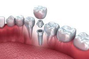 کاشت دندان فوری