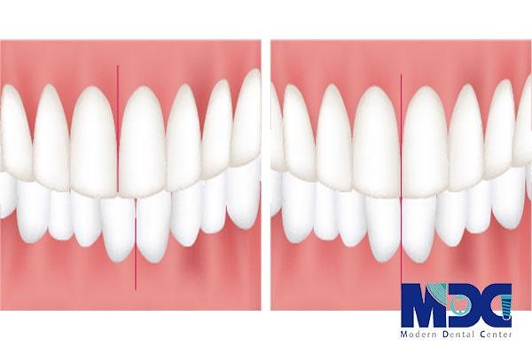 خط میان دندانی-کلینیک دندان پزشکی مدرن