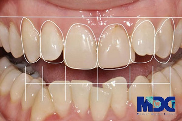 طراحی لبخند دیجیتال-کلینیک دندان پزشکی مدرن