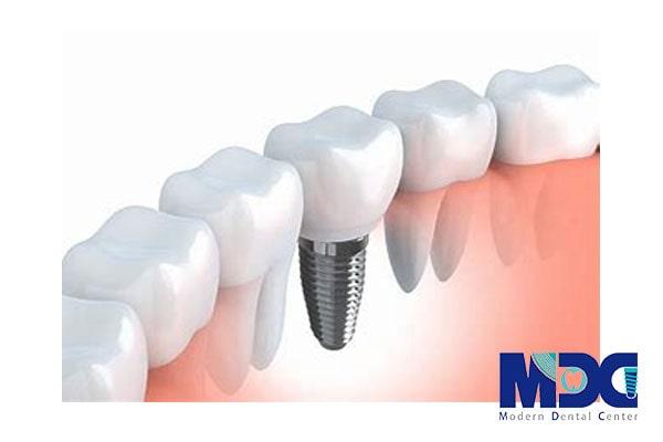 کاشت دندان-کلینیک دندان پزشکی مدرن