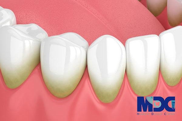 پلاک دندان-کلینیک دندان پزشکی مدرن