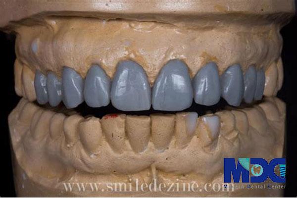 وکساپ-گلینیک دندان پزشکی مدرن