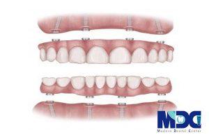 تکنولوژی جدید در ایمپلنت دندان