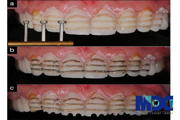 اصول تراش دندان در لمینیت