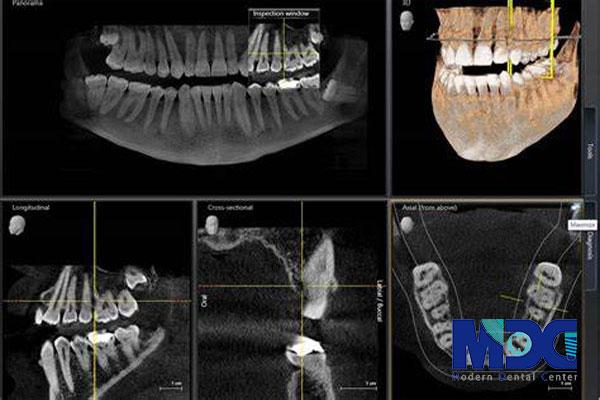 تصویر سه بعدی دندان
