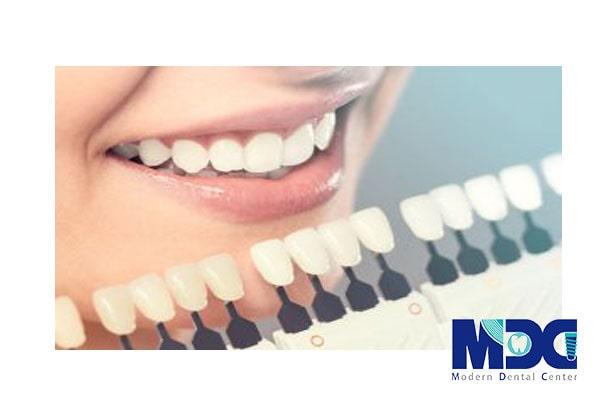 رنگ در دندانپزشکی طرح لبخند