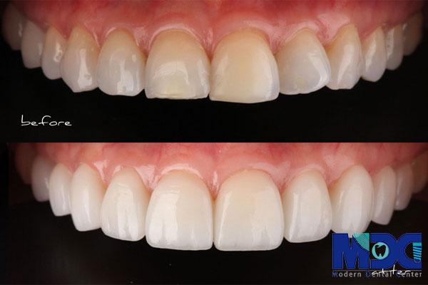 Read more about the article تفاوت کامپوزیت و سرامیک در دندانپزشکی زیبایی