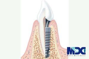 اصول جراحی کاشت ایمپلنت دندان و اقدامات اولیه