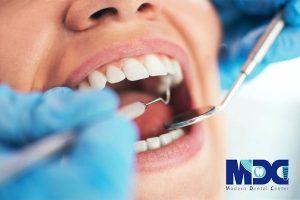 موفقیت کاشت ایمپلنت دندان و نرخ بقا