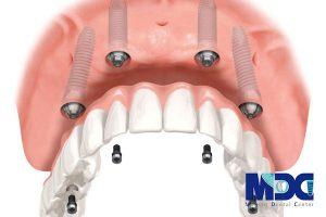 ایمپلنت فوری  همزمان با کشیدن دندان