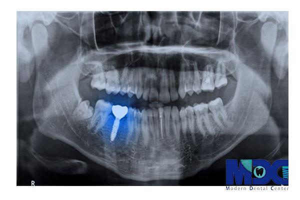 ایمپلنت کاشته شده-کلینیک دندان پزشکی مدرن