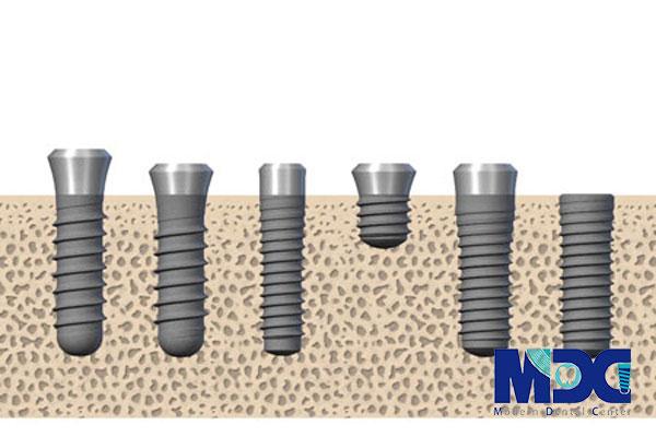 سایز های ایمپلنت-کلینیک دندان پزشکی مدرن