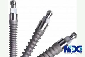 مینی ایمپلنت دندان |کاربردهای مینی ایمپلنت