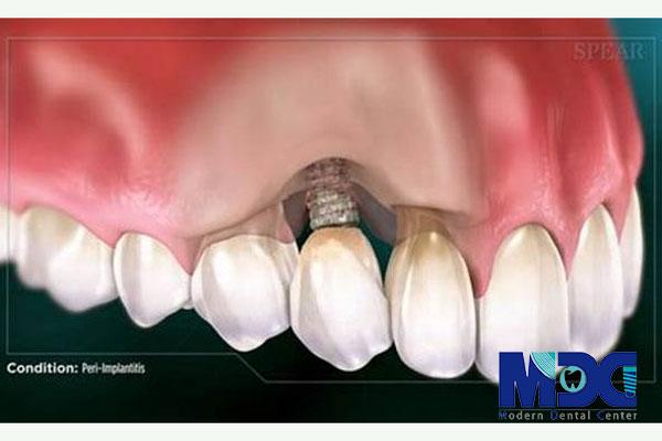ایمپلنت و بیماری بافت لثه دندان