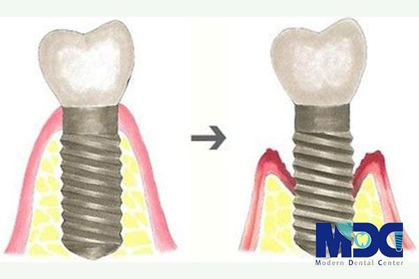 ایمپلنت دندان-کلینیک دندان پزشکی مدرن