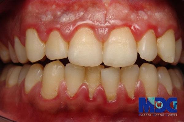 بیماری پریودنتال-کلینیک دندان پزشکی مدرن