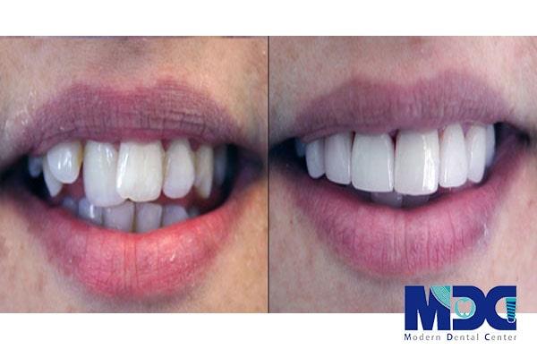 طراحی خط لبخند-کلینیک دندان پزشکی مدرن