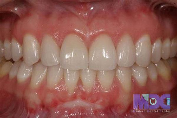 تفاوت کامپوزیت و سرامیک-کلینیک دندان پزشکی مدرن