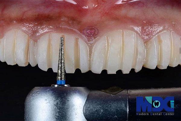 اصول صحیح تراش دندان برای طراحی لبخند