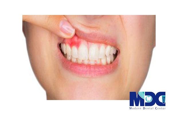 کاشت دندان برای بیماران پریودنتیت