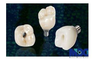 زیبایی تاج ایمپلنت دندان