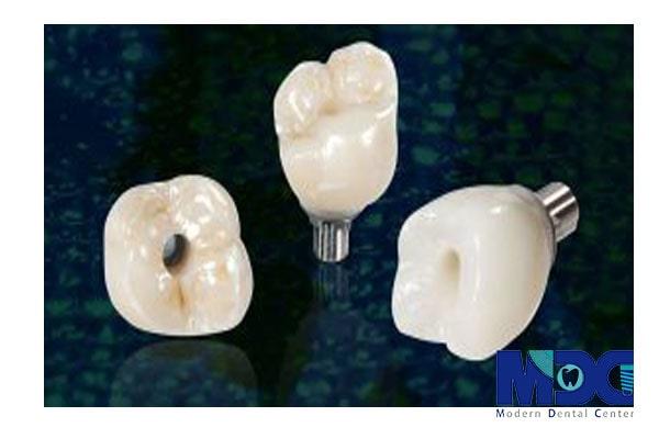 تاج ایمپلنت دندان و بررسی بعد زیبایی آن