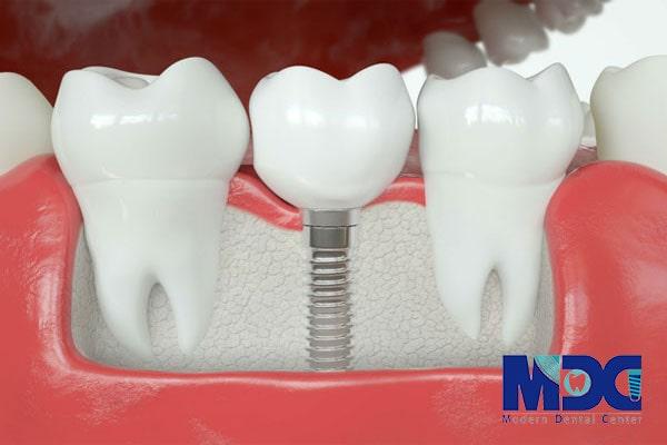 ایمپلنت برای بیماران پوکی استخوان-کلینیک دندان پزشکی مدرن