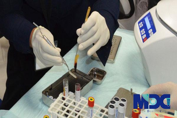 جداسازی پلاکت ها با استفاده از سانترفیوژ