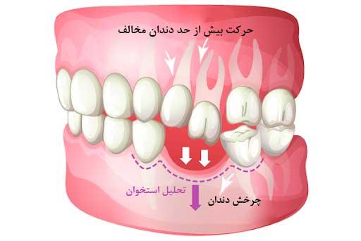 حرکت دندان