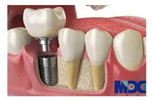 دندان مصنوعی معمولی و تفاوت آن با ایمپلنت