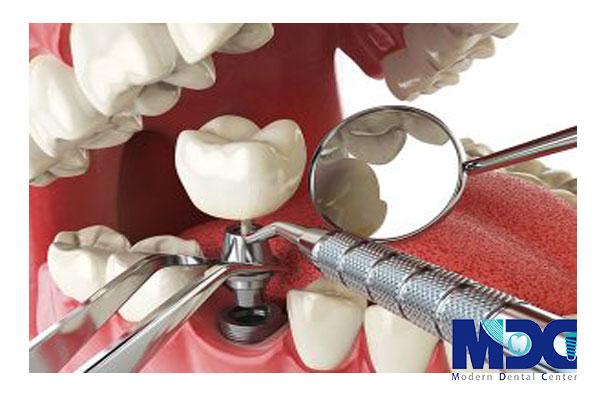 زیبایی ایمپلنت دندان و معیار های مهم آن