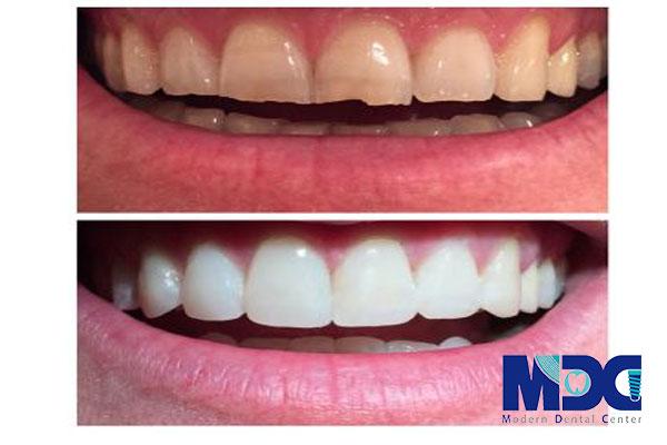 تغییر رنگ دندان- کلینیک دندانپزشکی مدرن