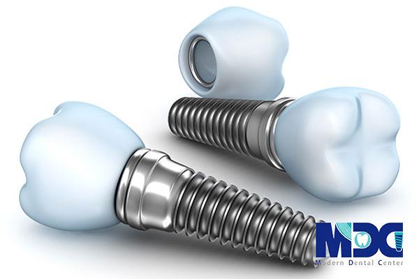 زیبایی ایمپلنت دندان