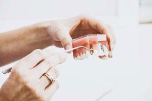 ایمپلنت دندان برای بیماران پریودنتیت