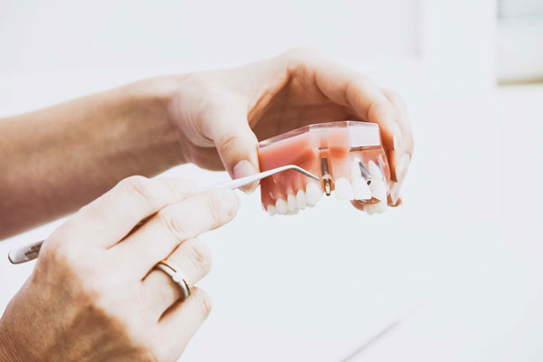 You are currently viewing ایمپلنت دندان برای بیماران پریودنتیت