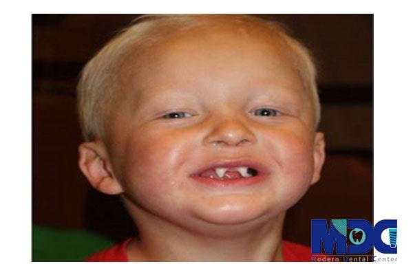 کاشت دندان در افراد مبتلا به ED
