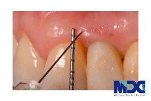 تاثیر هیالورونیک اسید بر ایمپلنت دندان