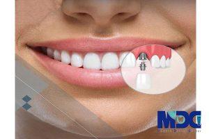 کاشت ایمپلنت یک روزه دندان