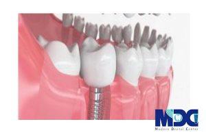مقایسه ایمپلنت دندان فوری و معمولی