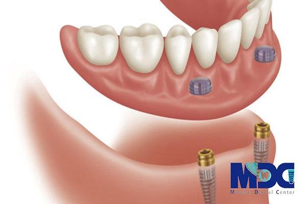 دنچر بر پایه ایمپلنت
