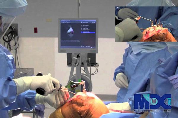 جراحی ایمپلنت با تکنولوژی نویدنت-کلینیک دندان پزشکی مدرن