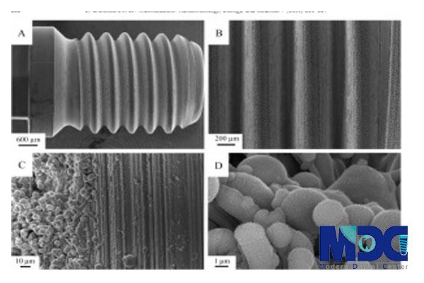کاشت دندان با فناوری نانو