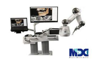 کاشت دندان با ربات