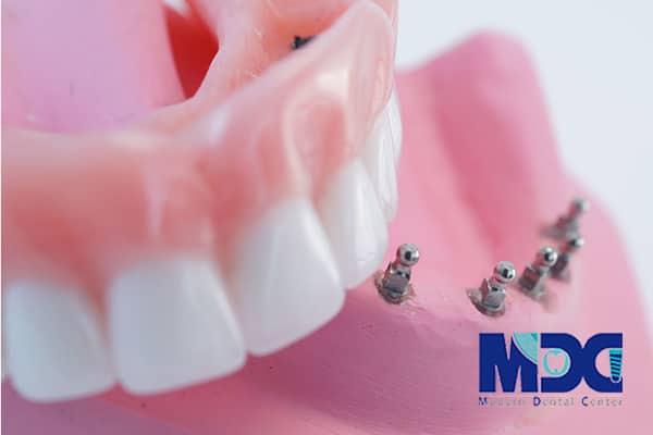 کاربرد مینی ایمپلنت در افراد با زخم دهانی